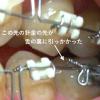 調整7回目はライトな調整【開咬矯正.40】針金が舌の粘膜をひっかけた事件