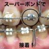 ブラケット破損で再び緊急通院★ブラケット接着にヒビ/奥歯の気になる回転/噛み合わせの変化